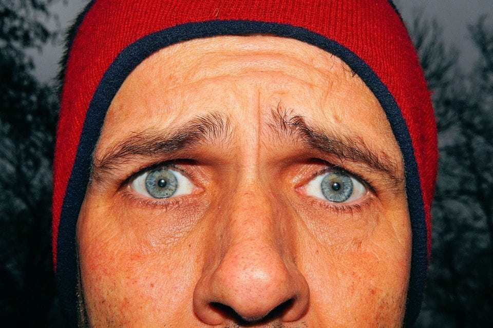 spot fade cream freckles ambi