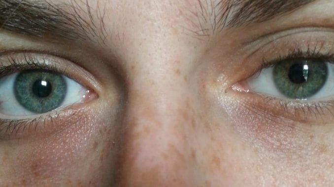 Heterochromia grey eye and brownish blue eye